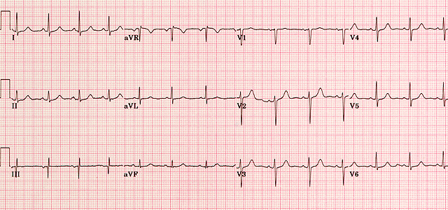 EKG normál